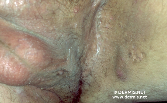 localisation: scrotum diagnosis: Acne Inversa Hidradenitis Suppurativa