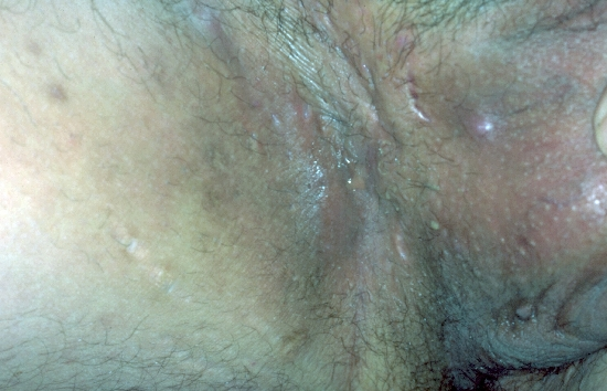localisation: inguinal region diagnosis: Acne Inversa Hidradenitis Suppurativa