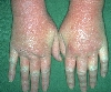 localisation: back of the hands, diagnosis: Allergic Hand Eczema, Allergic Contact Dermatitis, Acute & Chronic