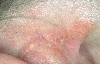 localisation: retro-auricular , diagnosis: Nevus Sebaceous of Jadassohn