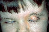 localisation: forehead, eyelids, nose, diagnosis: Feuerstein-Mims-Schimmelpenning Syndrome
