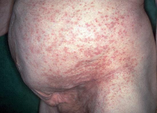 asthma-reality.com - Français - eczema anal