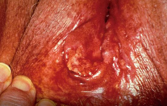 Labial+lesions+pictures
