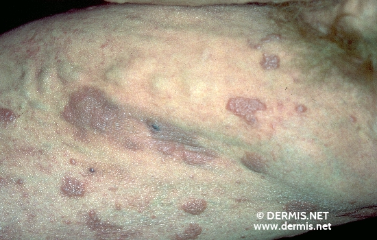 localisation: upper leg diagnosis: Pleomorphic T-Cell Lymphoma (Small Cell)