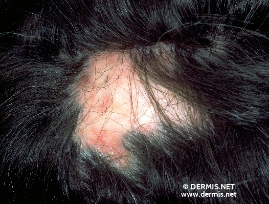 localisation: scalp diagnosis: Folliculitis Decalvans Capillitii