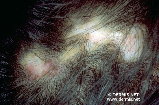 localisation: scalp diagnosis: Discoid Lupus Erythematosus (DLE)