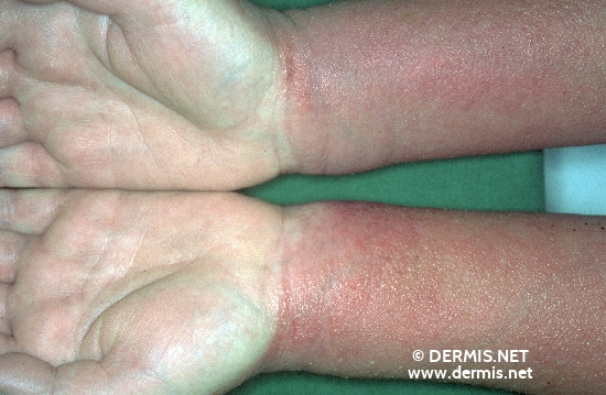 localisation: lower arms diagnosis: Allergic Hand Eczema Allergic Contact Dermatitis, Acute & Chronic