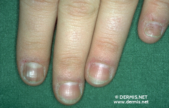localisation: fingernail diagnosis: Melanonychia Striata