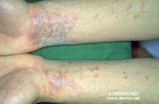 localisation: lower arms diagnosis: Lichen Planus