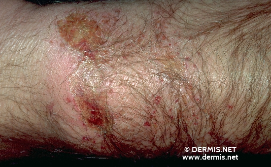 diagnosis: Acute Irritant Contact Dermatitis