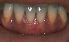 localisation: gingiva, diagnosis: Mucosal Lentigines