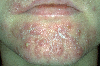 localisation: menton, diagnostic: Pyoderma Faciale