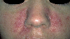 localisation: cheek, diagnosis: Pyoderma Faciale
