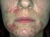 localisation: chin, cheek, diagnosis: Acne Cystica