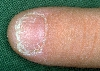 localisation: nail plate of the finger, diagnosis: Twenty-Nail-Dystrophy