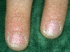 localisation: Nagelplatte (Fingerrnagel), Diagnose: Twenty-Nail-Dystrophy