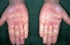 localisation: palms, diagnosis: Raynaud's Syndrome, Progressive Systemic Scleroderma