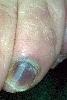 localisation: subungual (toe nail), diagnosis: Hematoma