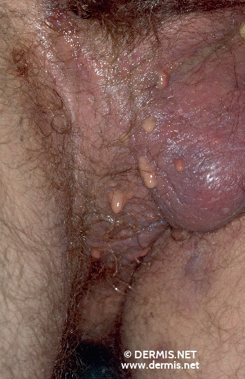 localisation: scrotum perineum diagnosis: Acne Inversa Hidradenitis Suppurativa