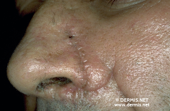 localisation: nose diagnosis: Neurofibromatosis Generalisata (von Recklinghausen)