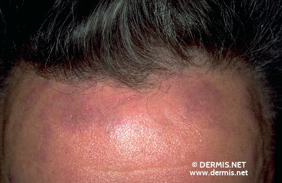 localisation: forehead diagnosis: Discoid Lupus Erythematosus (DLE)
