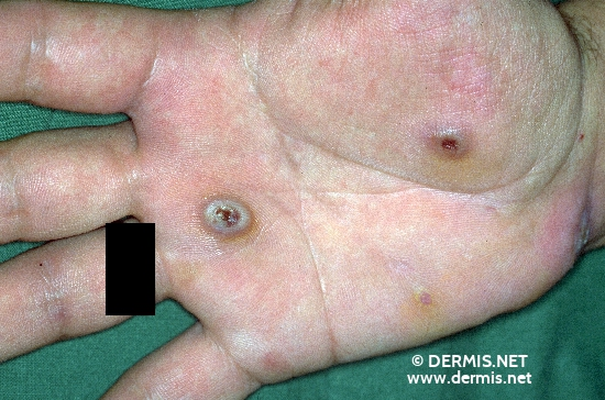 localisation: palms diagnosis: Large Cell Anaplastic T-Cell Lymphoma