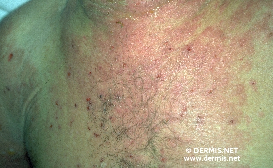 localisation: chest diagnosis: Bullous Pemphigoid