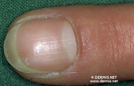 localisation: fingernail diagnosis: Melanonychia Striata Laugier-Hunziker´s Syndrome