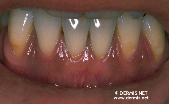 localisation: gingiva diagnosis: Laugier-Hunziker´s Syndrome Mucosal Lentigines