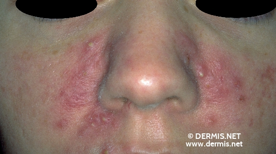 localisation: cheek diagnosis: Pyoderma Faciale