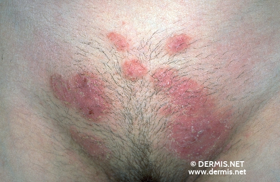 localisation: lower abdomen mons pubis diagnosis: Tinea Corporis
