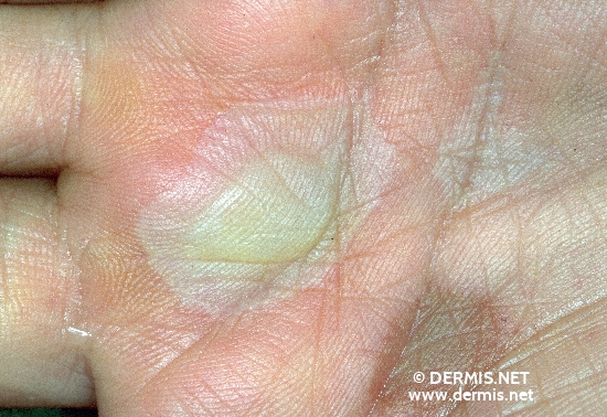 localisation: palms diagnosis: Stevens-Johnson Syndrome