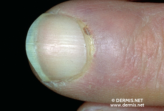 localisation: finger proximal nail fold of the finger diagnosis: Progressive Systemic Scleroderma