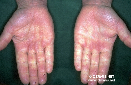 localisation: palms diagnosis: Raynaud's Syndrome Progressive Systemic Scleroderma