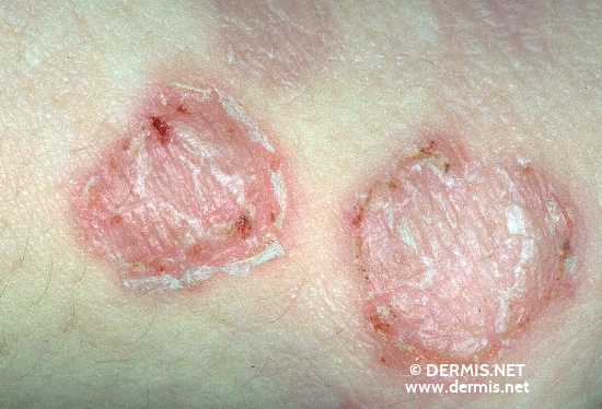 diagnosis: Small-Vesicle Impetigo Contagiosa