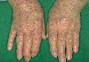 localisation: hands, diagnosis: Polymorphic Light Eruption
