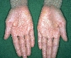 localisation: palms, diagnosis: Ichthyosis Congenita