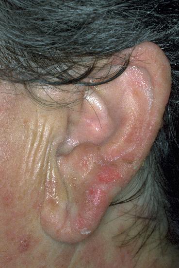 Hydroa vacciniforme - Huidarts.com