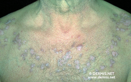localisation: Brust, obere Diagnose: Lupus erythematodes discoides