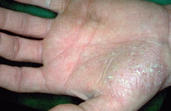 palmar plantar pustular psoriasis