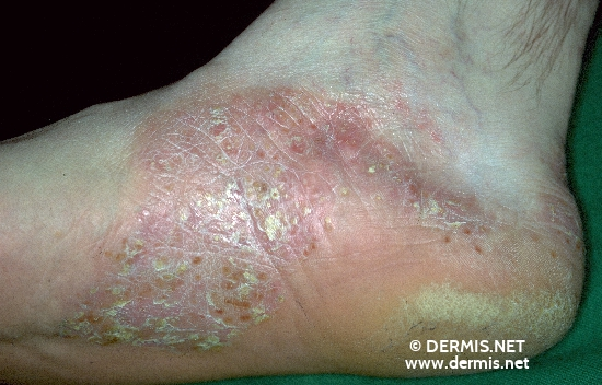 localisation: sole diagnosis: Pustular Psoriasis of the Palms and Soles