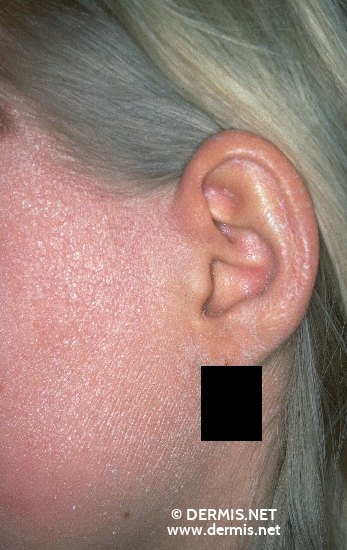 localisation: ear cheek diagnosis: Ichthyosis Congenita
