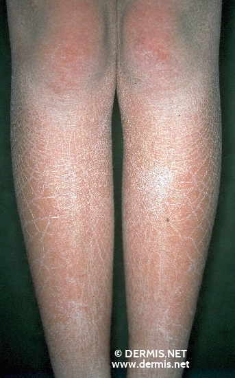 localisation: lower leg diagnosis: Ichthyosis Congenita