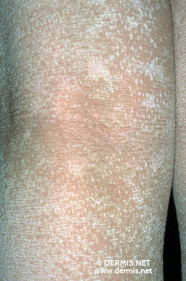 localisation: hollow of the knee diagnosis: Ichthyosis Congenita