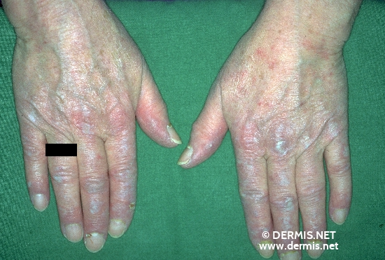localisation: finger proximal nail fold of the finger diagnosis: Dermatomyositis