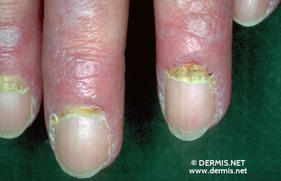 localisation: digital distal interphalangeal joint proximal nail fold of the finger diagnosis: Dermatomyositis