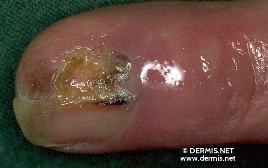 localisation: proximal nail fold of the finger nail plate of the finger diagnosis: Acrolentiginous Melanoma (ALM)
