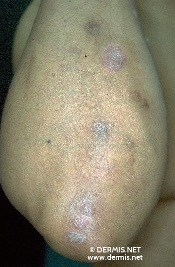localisation: elbow diagnosis: Psoriasis Vulgaris, Chronic Stationary Type