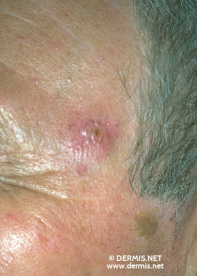 diagnosis: Solid-Cystic Basal Cell Carcinoma