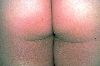 localisation: buttocks, diagnosis: Pellagroid Drug Eruption